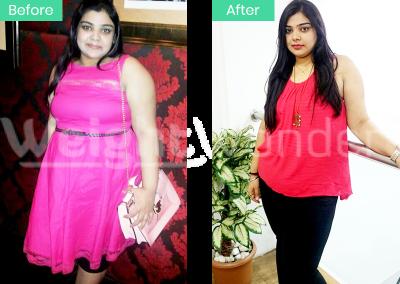 Priyanshi (Lost 18kgs)