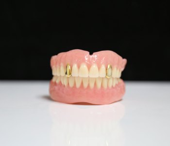 Denture with Gold Inlays