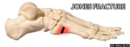 jonesfracture