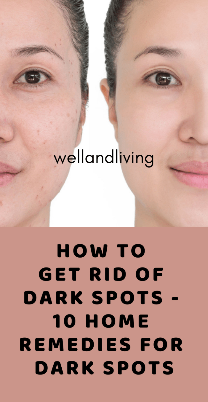 How to Get Rid Of Dark Spots - 10 Home Remedies for Dark Spots