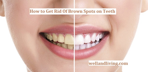 How to Get Rid Of Brown Spot on Teeth