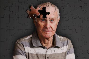 アルツハイマー病の傾向と対策