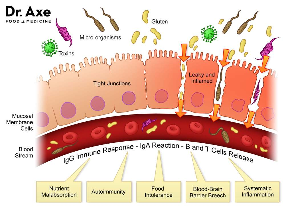 Leaky Gut Syndrome ลำไส้รั่ว