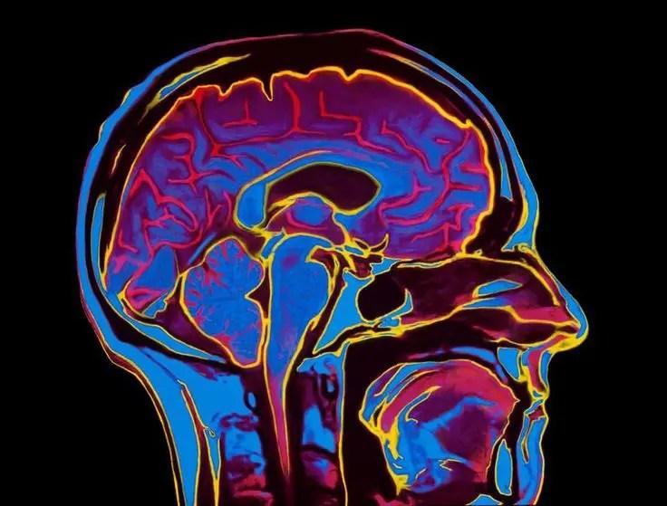 Fibromyalgia Study: It's a Real Disease