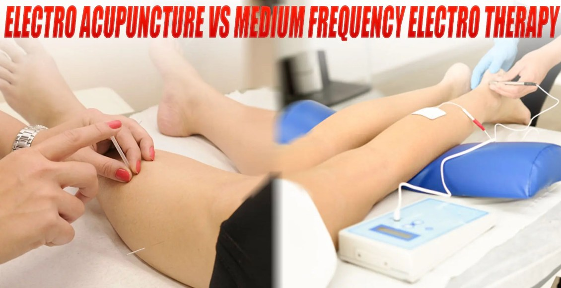 Electroacupuncture vs. Medium-Frequency Electrotherapy for Sciatica