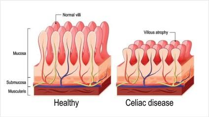 Celiac-Disease-Causes-and-Risk-Factors-alt-722x406