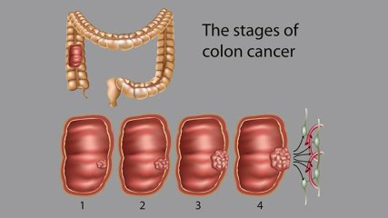 Colon-Cancer-What-do-the-Stages-Mean-722x406
