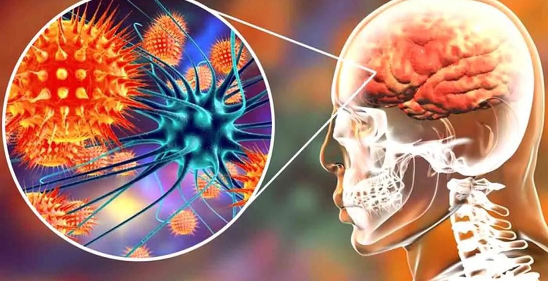 Functional Neurology: Understanding Autoimmune Brain Disease | El Paso, TX Chiropractor