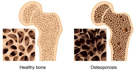 osteoporosis-cropped