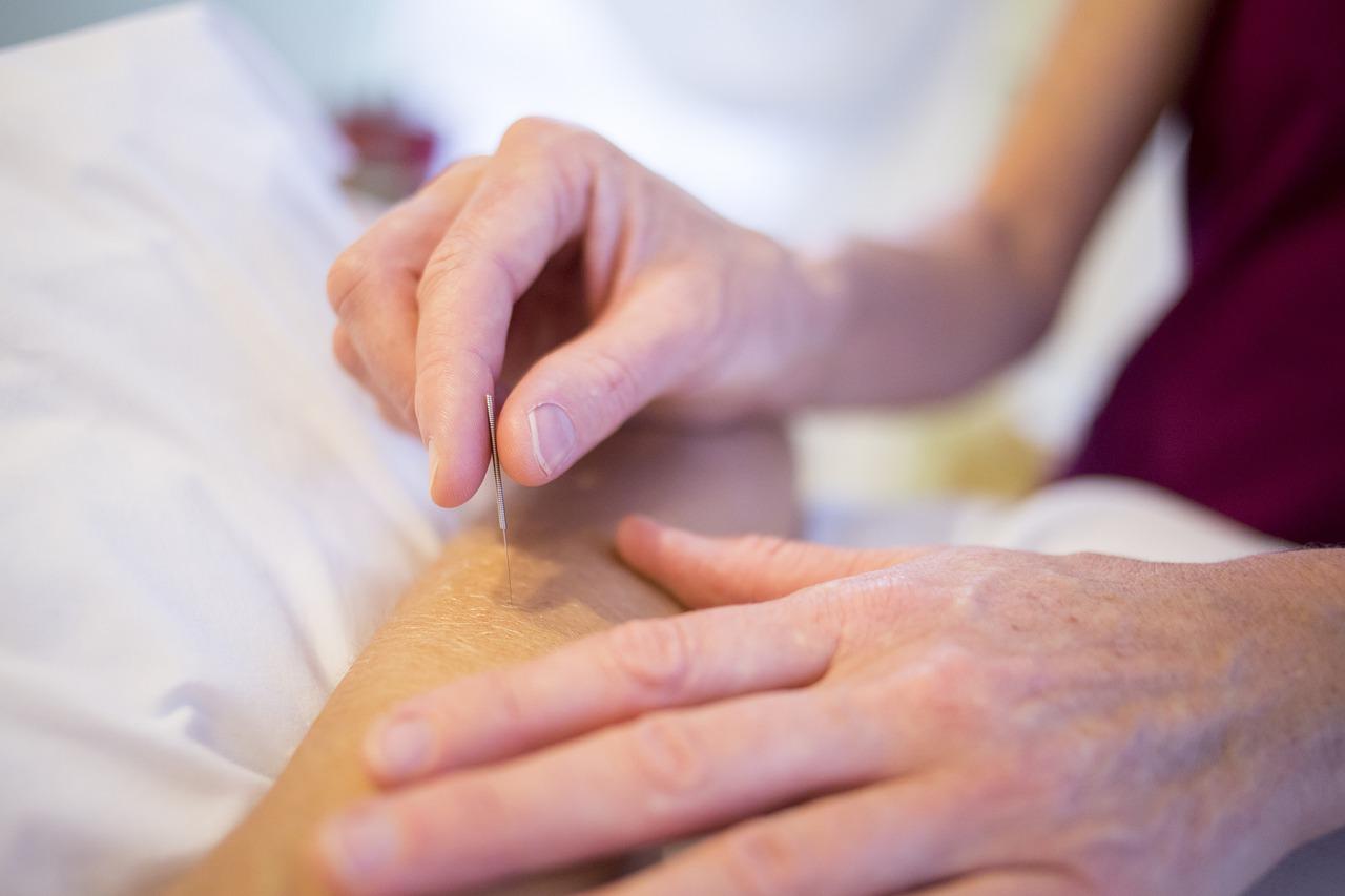 acupuncture, holistic healing, holistic