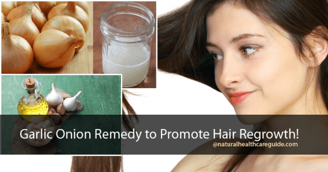 Garlic Onion Remedy to Promote Hair Regrowth!