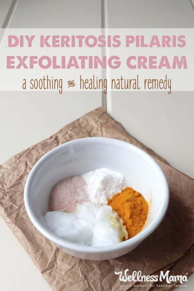 Ever notice little red bumps on the backs of your arms? It is a skin condition called keratosis pilaris. Learn how to make a simple cream to combat it.