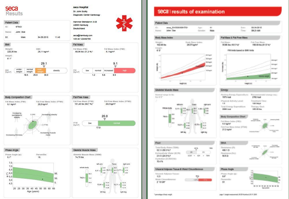 secs Body Composition Report Example