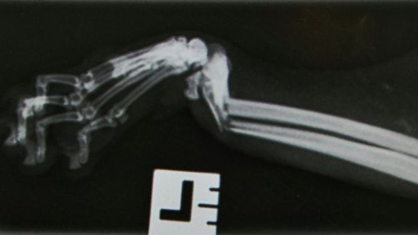 Shinji's x-rays showed clear breaks in his legs