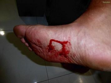 Die Blutegel machen keine halben Sachen (Arons Fuß)