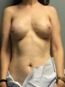After Breast Reconstruction