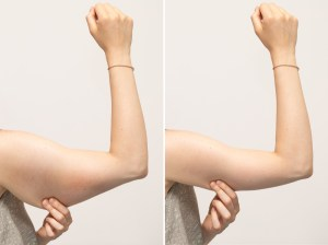 A split screen of a woman pinching the skin beneath her arm. Showing the before and after results of brachioplasty surgery