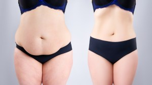 Woman's belly before and after plastic surgery on gray background