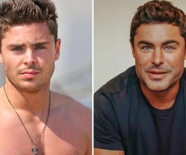 """""""I'm Going To Sue The Plastic Surgeon"""": Zac Efron's """"New Face"""" Sparked Mockery And criticism"""