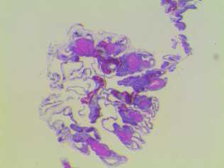 P. versipora mature eggs