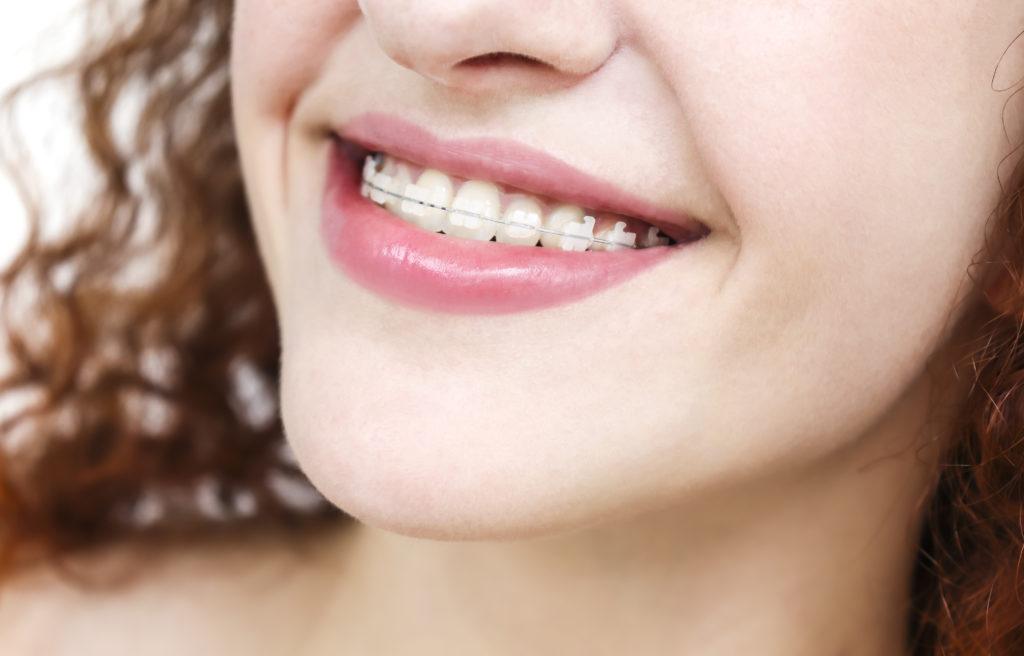 Clear Ceramic Braces West Arvada Orthodontics Arvada Colorado
