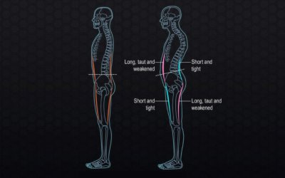 Pelvic alignment and your posture