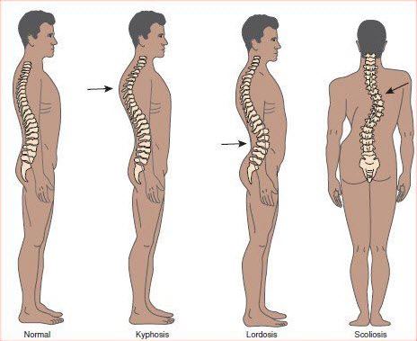 Spinal Curvature Disorders