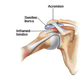 Cause of Shoulder Impingement