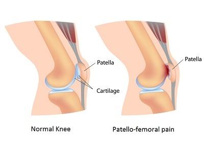 Patellofemoral Pain Runners Knee