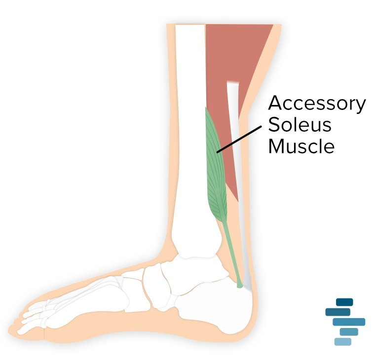 illustration of accessory soleus muscle