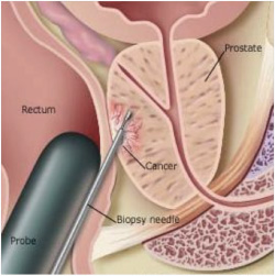 Image result for prostate biopsy