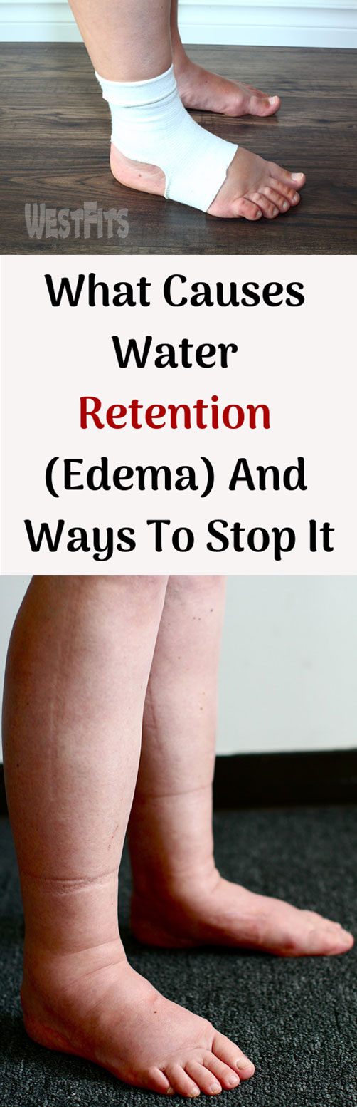 What Causes Water Retention (Edema) And Ways To Stop It