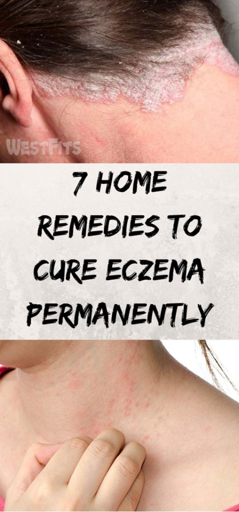 7 Home Remedies To Cure Eczema Permanently