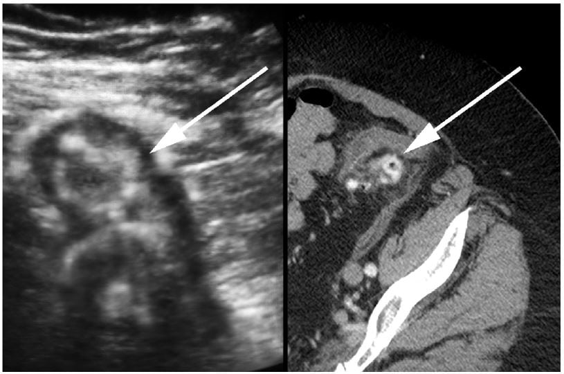 Elderly Woman With Abdominal Pain Bedside Ultrasound