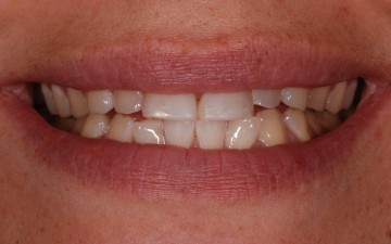 Etobicoke Dentist - West Metro Dental - Before Veneers Treatment