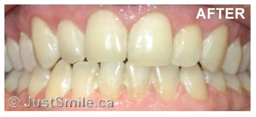 Etobicoke Dentist - West Metro Dental - Smile enhancement after
