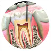 Treatments: Root Filling