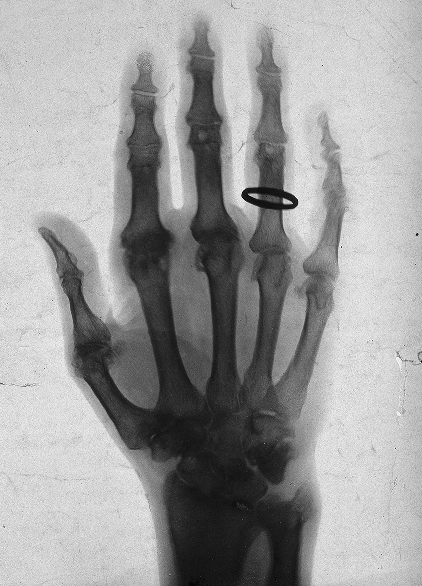 The bones of a hand, with a ring on one finger, viewed through. Credit: Wellcome Library, London.