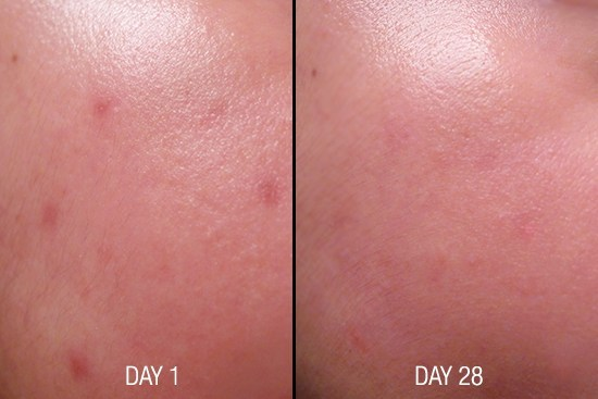 Cosmeceuticals C20 serum Before After