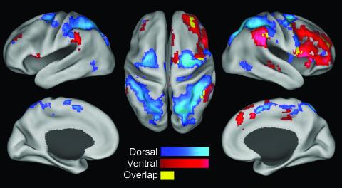 自発的な脳活動から覗く2つの注意機能
