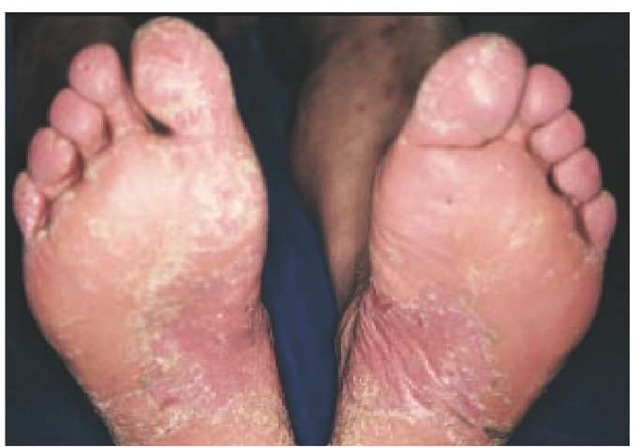 Palmoplantar psoriasis is a type where lesions are present ...