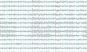Za pomocą EEG da się przewidzieć ile zajmie Ci nauka języka obcego
