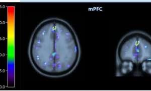 Z aplikacją BrainHQ lepiej rozwiniecie funkcje poznawcze Waszych mózgów