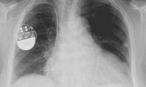 Rozruszniki serca można shakować i zagrozić życiu pacjenta