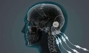 Terapia na Parkinsona dostarcza białko bezpośrednio do mózgu