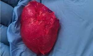 To serce wykonano w technologii druku 3D