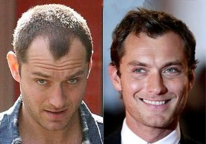 how much does bosley hair restoration cost