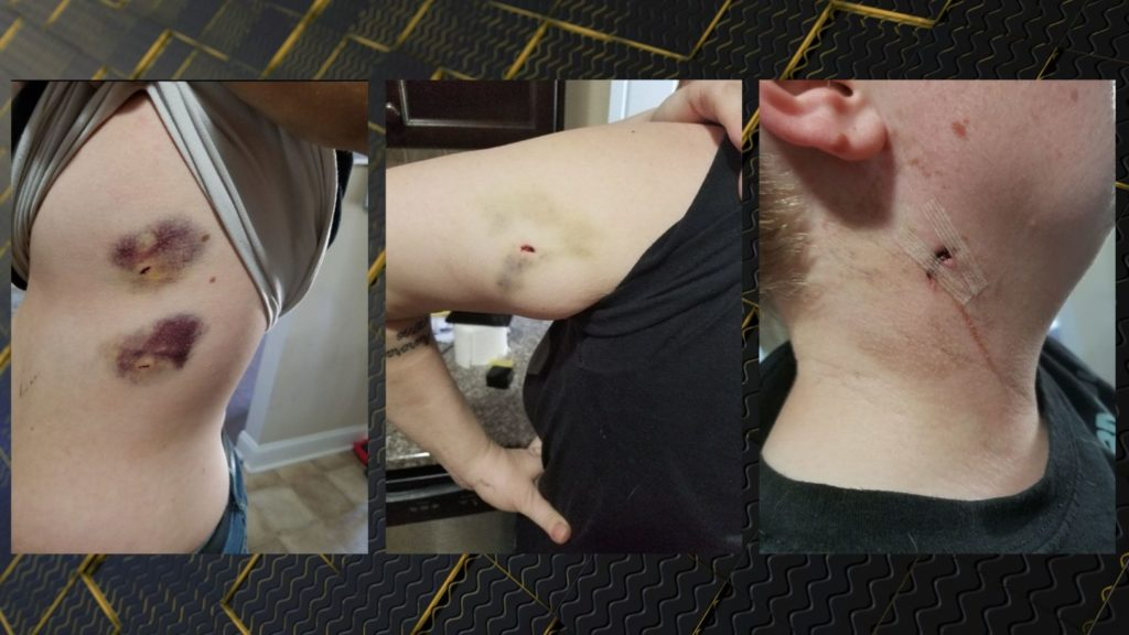 Grovetown woman says she and friend were stabbed by Uber driver