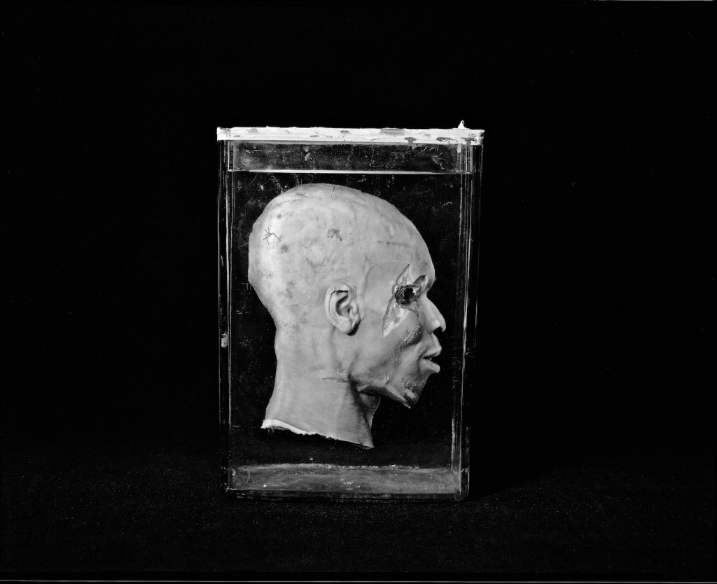 """Head, Mutter Museum, 2004"" by Neal Rantoul (courtesy of the artist and 555 Gallery, Boston)"