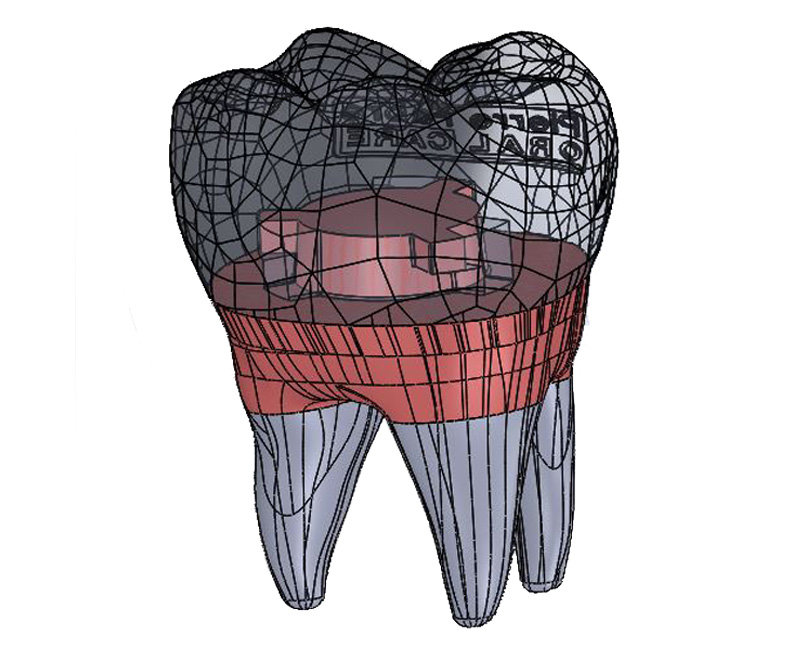 3D design drawing of tooth, dental care,